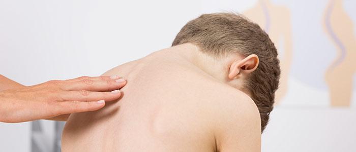 Chiropractic Care in Santa Monica For Scoliosis Relief